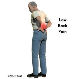 Low back pain treatment by the Muscular Injury Specialist in Cape Coral