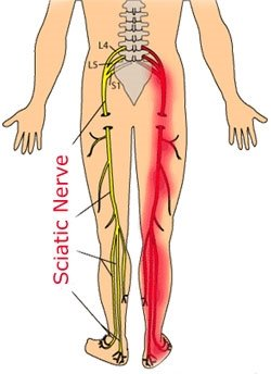 Quality massage therapy treating low back pain and sciatica in Cape Coral and Fort Myers